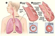 A picture of asthma airwaves